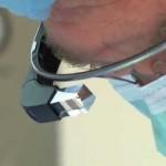 doutor-glass-5